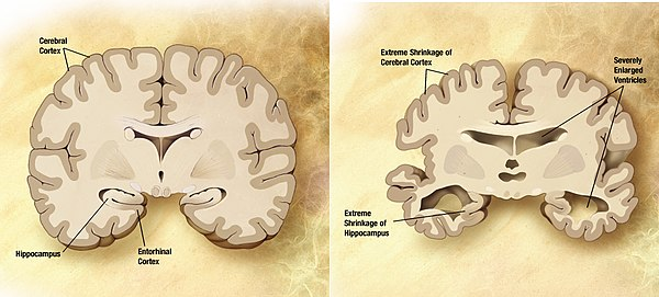 The History of Sleep Anticipates Late Life Alzheimer's Pathology